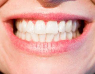 Business dei denti bianchi