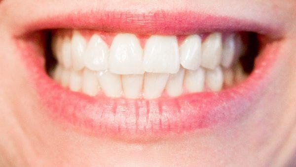 Business dei denti bianchi: si va sempre più in cerca di soluzioni