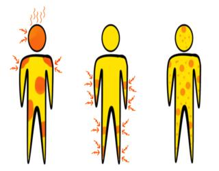 Malattia di Lyme sintomi