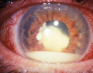 retinoblastoma cos'è